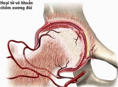 Hoại tử chỏm xương đùi: Căn bệnh đang trẻ hóa và gặp 80% ở nam giới