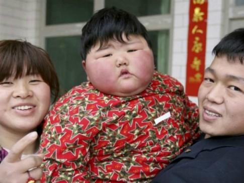 Không chỉ ô nhiễm mà đây còn là đất nước có nhiều trẻ em béo phì nhất trên thế giới
