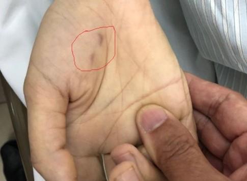 Không tiêm vắc xin phòng dại, nữ bác sĩ thú y tử vong sau khi bị chó dại cắn