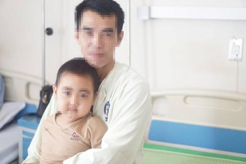 Lạm dụng corticoid, bé 5 tuổi bị béo phì và mọc rậm lông vùng mặt