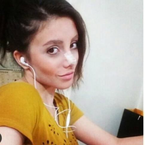 Phẫu thuật thẩm mỹ để giống Angelina Joile, cô gái trẻ 'hóa ma' sau hơn 50 lần nằm trên bàn mổ