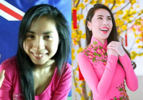 Sao Việt chứng minh 'sửa răng' có thể 'cứu' cả đời bạn
