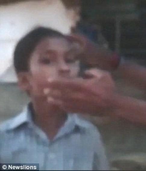 Sốc: Kiến làm tổ trong mắt bé gái Ấn Độ