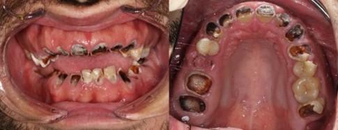 Thanh niên phải trồng lại cả hàm răng vì uống loại nước này hằng ngày