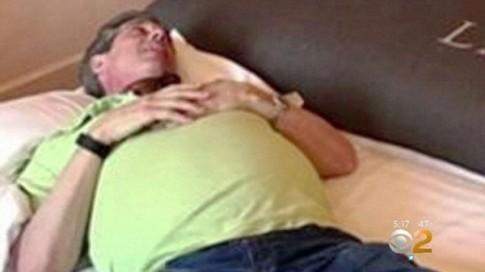 Tưởng bụng to do uống bia, người đàn ông choáng khi phát hiện khối mỡ 12kg trong bụng
