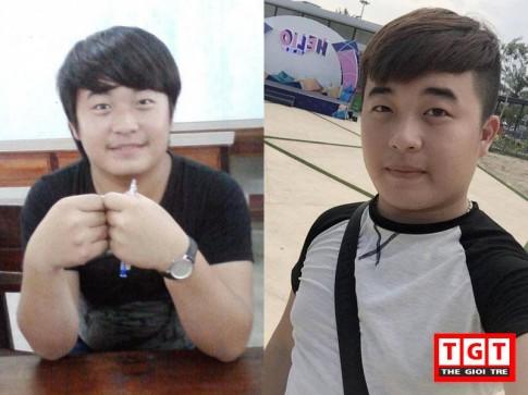 """9x Quảng Bình chi 200 triệu cho phẫu thuật thẩm mỹ để """"lột xác"""" thành hot boy"""