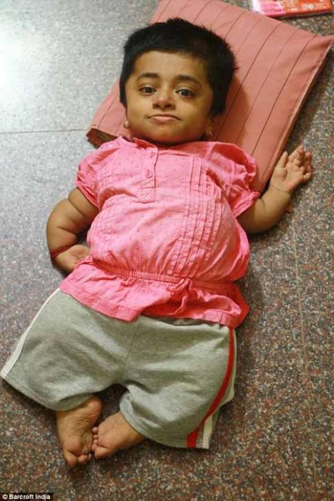 Cảm phục nghị lực của cô gái tuổi teen trong hình hài bé 2 tuổi