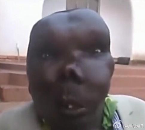 Người đàn ông xấu xí nhất Uganda đã làm cha lần thứ 8