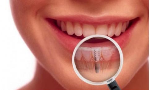 Những yếu tố nào ảnh hưởng đến kết quả trồng răng Implant