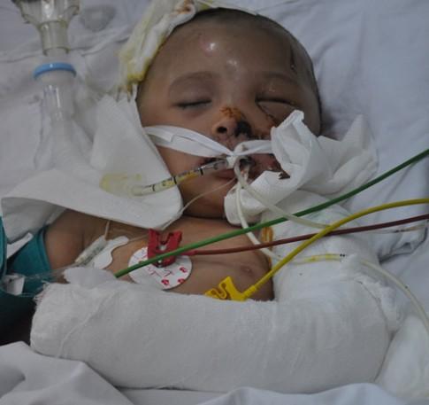 """Nước mắt bà mẹ có con 3 tuổi gửi """"nuôi não"""" tại bệnh viện"""