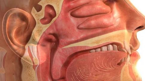 Ung thư vòm họng là gì và cách phòng tránh như thế nào?