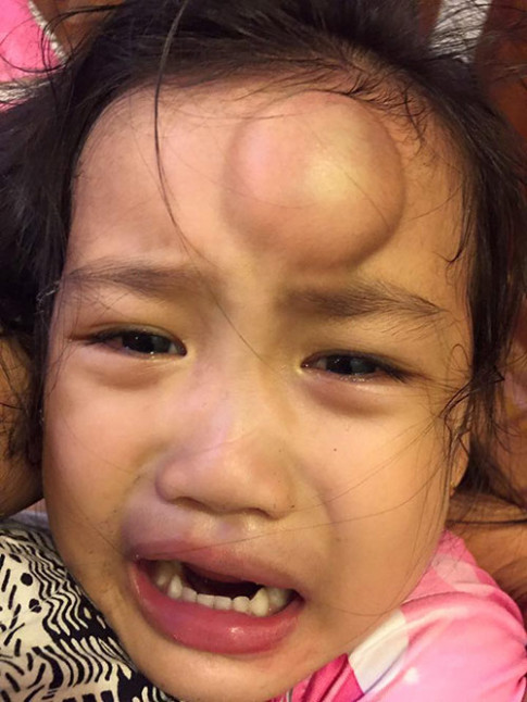"""Ốc Thanh Vân hốt hoảng với khuôn mặt có cục sưng """"to như quả ổi"""" của con gái"""