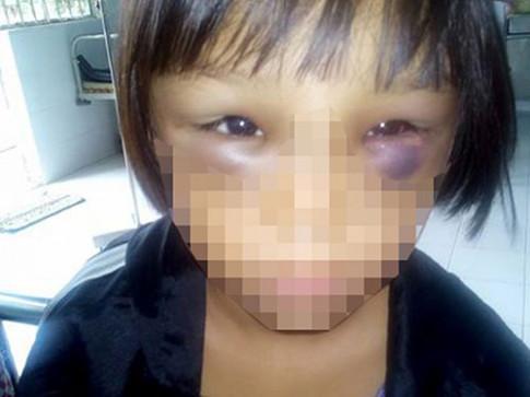 Sức khỏe bé gái 7 tuổi nghi bị mẹ kế bạo hành đã tốt hơn