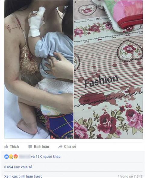 Vì sao trẻ sơ sinh có thể chết thảm vì bị... chuột cắn?