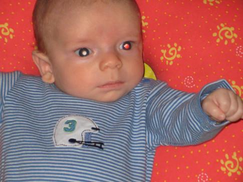 """Xem ảnh sơ sinh của con bị ung thư mắt, bố """"rùng mình"""" phát hiện điều kỳ lạ"""