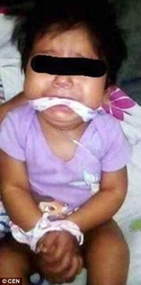 Bé gái 9 tháng tuổi bị mẹ và giúp việc bịt miệng, trói tay rồi đăng lên Facebook