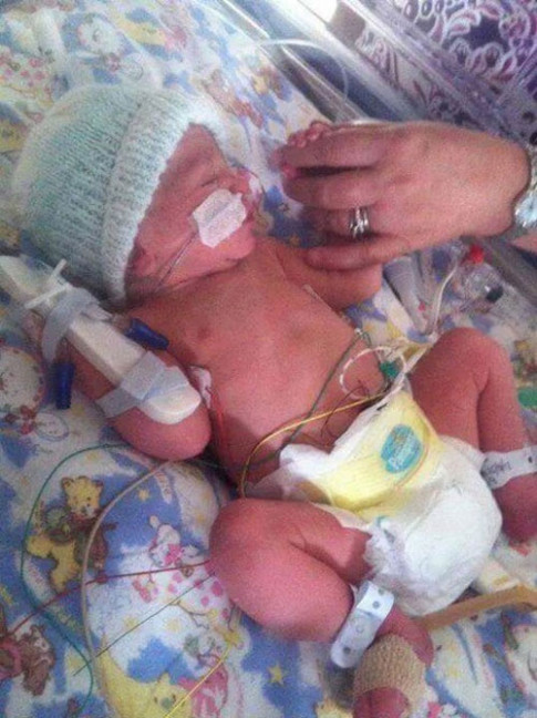 Bé sơ sinh trở về từ cõi chết sau khi bác sĩ thông báo đã chết lưu