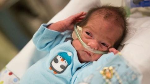 Chuyện ly kỳ về những đứa trẻ chào đời khỏe mạnh từ cơ thể người mẹ đã chết