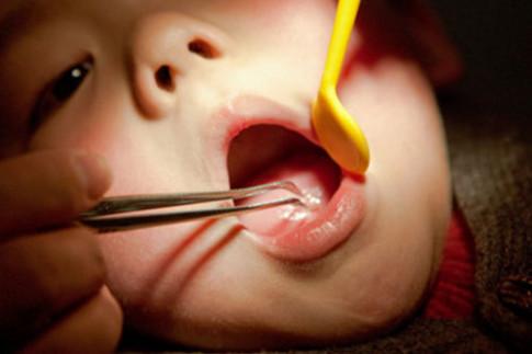 Dị vật trong tai, mũi, họng trẻ - cha mẹ cần chú ý để tránh ân hận suốt đời