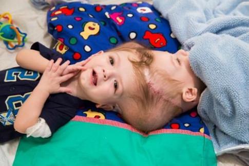 Hai bé trai song sinh liền đầu vẫn rất kháu khỉnh khiến triệu người xót xa