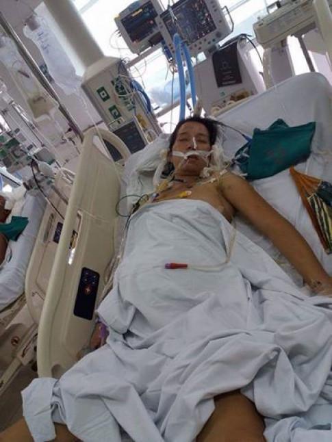 Mẹ bầu bị tai nạn gẫy 18 chiếc xương sườn vẫn cố cứu thai nhi