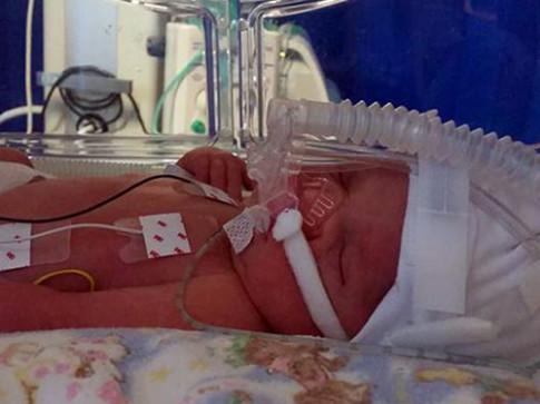 Người mẹ này đã chịu 16 lần sảy thai, cuối cùng vẫn mất con 15 tháng vì căn bệnh ít ai ngờ