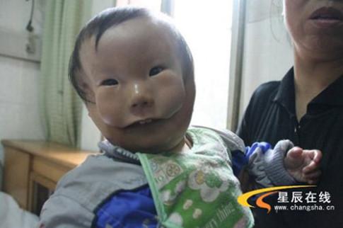 """Siêu âm đều đặn, bà mẹ trẻ vẫn khóc nghẹn khi sinh con """"2 mặt"""""""