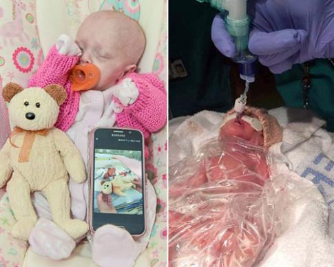 Sinh sớm hơn 3 tháng, em bé này sống sót thần kỳ nhờ một chiếc túi