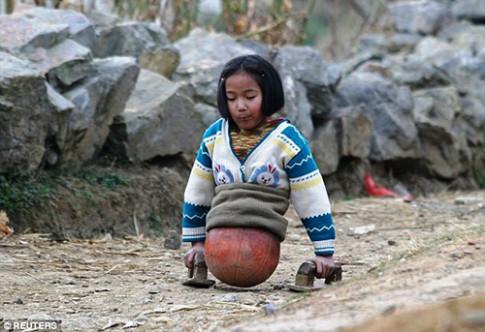 Bé gái tàn tật có nửa thân dưới là một quả bóng rổ, khi lớn khiến triệu người ngưỡng mộ