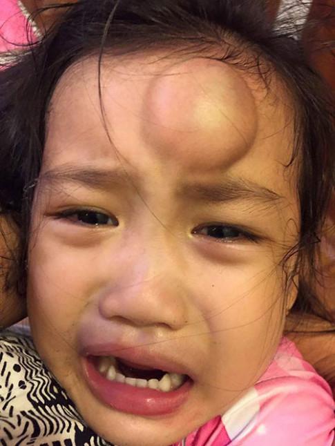 Con gái Vân Ốc sưng đầu, con Hồng Nhung từng gãy xương vì tai nạn trẻ nào cũng có thể gặp phải