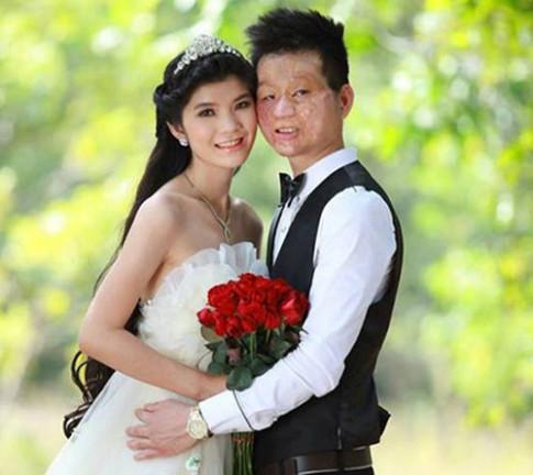 Đôi chồng xấu vợ xinh: Lén uống lá tía tô khi đi đẻ ở Canada, có con càng yêu nhau hơn