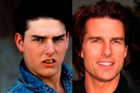Giật mình với hàm răng xấu xí của sao Hollywood
