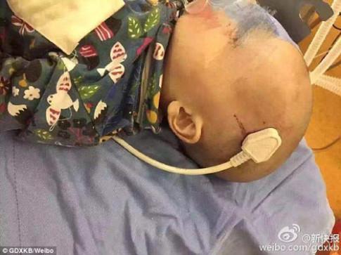Ngã từ giường xuống đất, bé trai 2 tuổi bị phích điện cắm xiên vào não