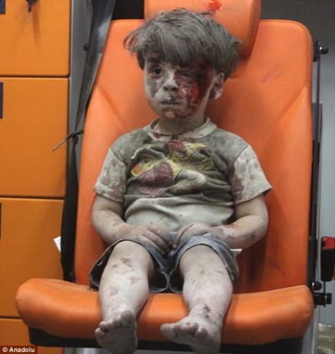 Nhói lòng xem những bức ảnh đau thương nhất 2016 về trẻ em