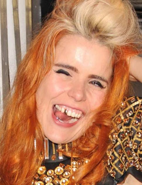 Những hàm răng kỳ quái của sao Hollywood