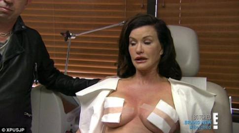 Những mỹ nhân tự tin khoe chiến tích nâng ngực