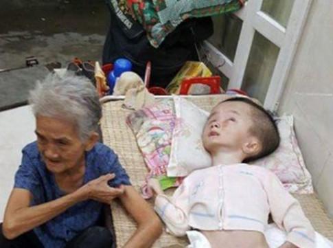 Rơi nước mắt nghe cụ bà 83 tuổi kể chuyện nuôi cháu 'đầu to' suốt 15 năm