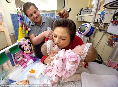 Sinh ra chung tử cung, hai cô bé này vẫn lớn lên xinh đẹp