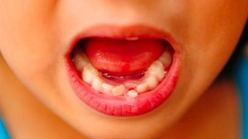 Tại sao nha sĩ khuyên cất giữ răng sữa của trẻ để khi cần có thể cứu mạng con?