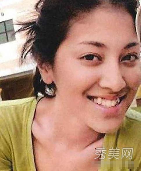 Tân hoa hậu Hong Kong từng chỉnh răng